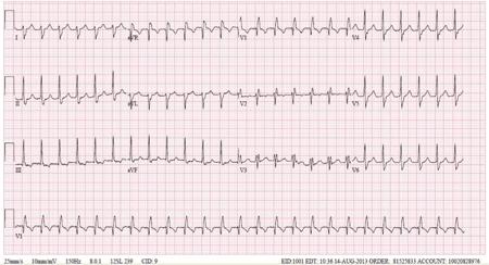 Taquicardia Ventricular Fascicular Anterior