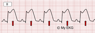 Elévation du segment ST dans l'infarctus aigu