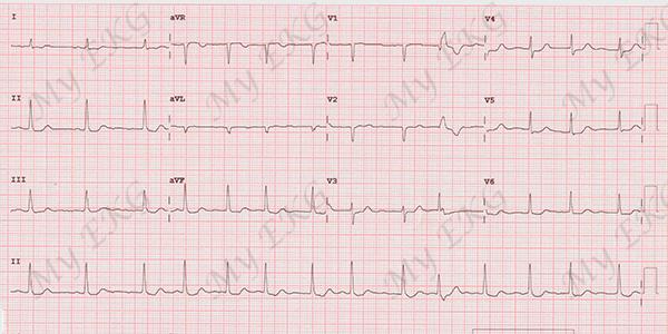 Phénomène d'Ashman sur l'électrocardiogramme