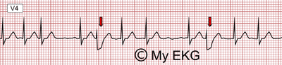 Électrocardiogramme et phénomène d'Ashman