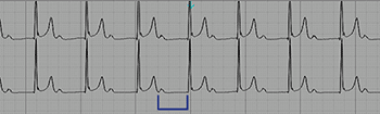 Electrocardiogram of First Degree Atrioventricular Block