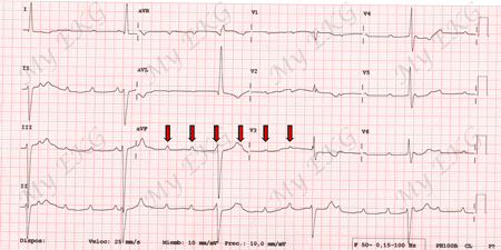 Electrocardiogram of Complete Atrioventricular Block