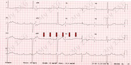 Électrocardiogramme du Bloc AV complet