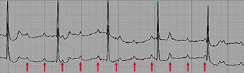 Third degree Atrioventricular Block, Complete AV Block