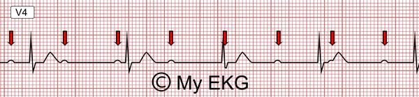 Bloc atrio-ventriculaire du troisième degré, Bloc AV complet
