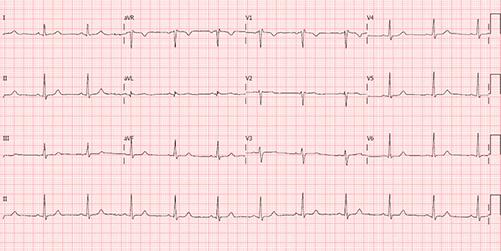 Eletrocardiograma do Bloqueio Incompleto do Ramo Direito
