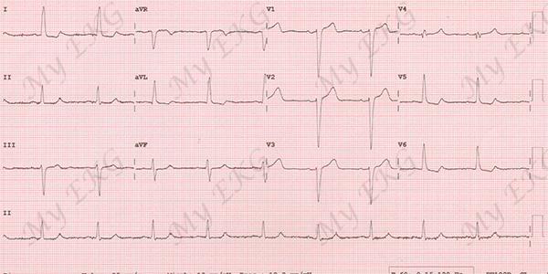 Electrocardiogram of Incomplete Left Bundle Branch Block