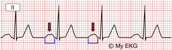 Electrocardiogram Partial Interatrial Block