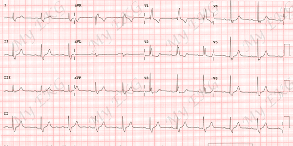 Electrocardiogram of Complete Right Bundle Branch Block