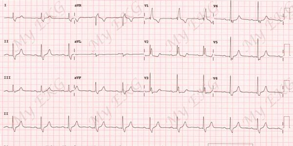 Electrocardiogramme d'un Bloc complet de branche droit