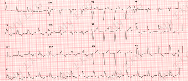 Electrocardiogram of Left Bundle Branch Block (LBBB)
