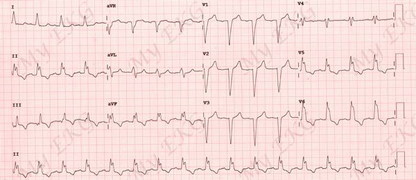 Eletrocardiograma de Bloqueio do Ramo Esquerdo
