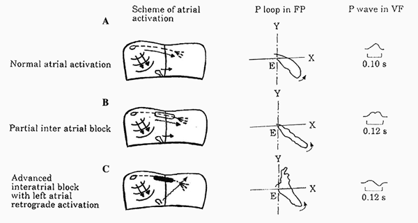 Atrial Activation of Interatrial Blocks