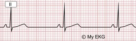 Électrocardiogramme de Bradycardie sinusale