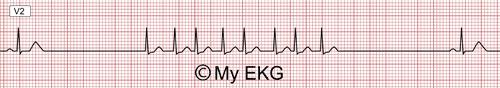 Syndrome bradycardie-tachycardie