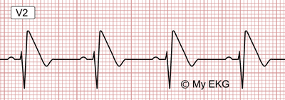 Electrocardiogram of Brugada Syndrome, Type 1