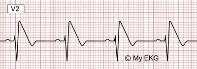 Eletrocardiograma de Padrão de Brugada tipo 1