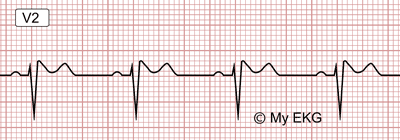 Electrocardiogram of Brugada Syndrome, Type 2