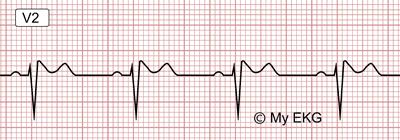 Eletrocardiograma de Padrão de Brugada tipo 2