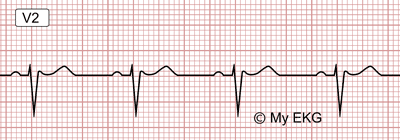 Electrocardiogram of Brugada Syndrome, Type 3