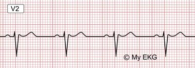 Eletrocardiograma de Padrão de Brugada tipo 3