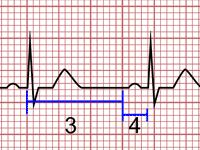 Cálculo da Frequência Cardíaca