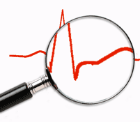 How to Read and Report an Electrocardiogram. Guide to read Electrocardiograms