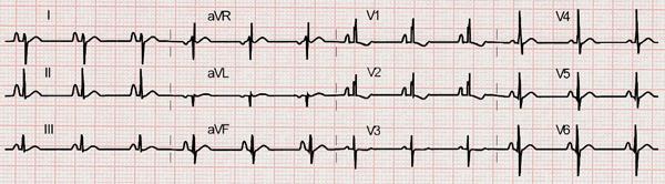 Eletrocardiograma da Comunicação Interatrial tipo Ostium Secumdum