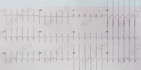 Electrocardiogram of a Severe Ventricular Septal Defect