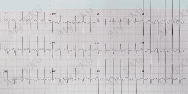Eletrocardiograma de uma grande comunicação interventricular