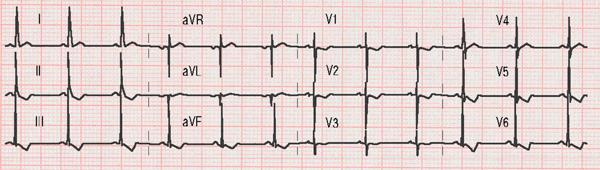 Electrocardiogram of a Ventricular Septal Defect