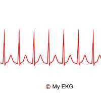 Supraventricular Tachycardia
