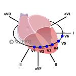 Correlation between Heart Walls and EKG Leads