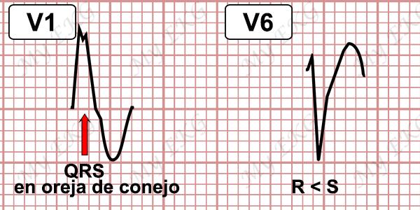Criterios de Taquicardia Ventricular con Bloqueo de Rama Izquierda