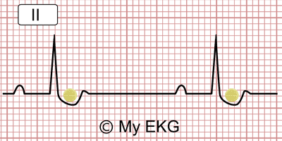 Reverse tick on the Electrocardiogram