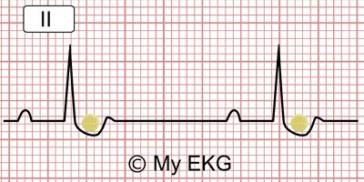 Cupule digitalique dans l'électrocardiogramme
