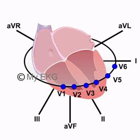 Localisation des dérivations de l'électrocardiogramme