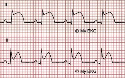 Differenze tral'ECG diuno STEMIequellodiunapericardite