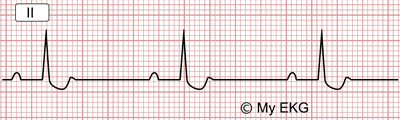 Electrocardiogram changes caused by Digoxin