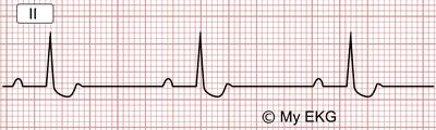 Altérations électrocardiographiques occasionnées par la Digoxine