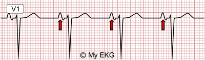 Right Atrial Enlargement in lead V1