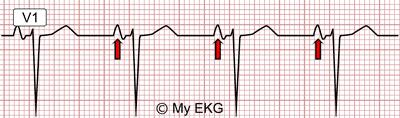 Right Atrial Enlargement in lead V1