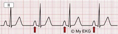 Electrocardiogram of Right Atrial Enlargement