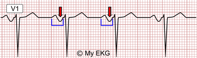 Eletrocardiograma Sobrecarga Atrial Esquerda na derivação V1