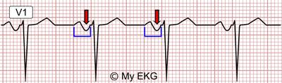 Left Atrial Enlargement in lead V1
