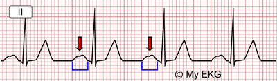 Left Atrial Enlargement Electrocardiogram