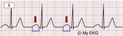 Électrocardiogramme de l'hypertrophie auriculaire gauche