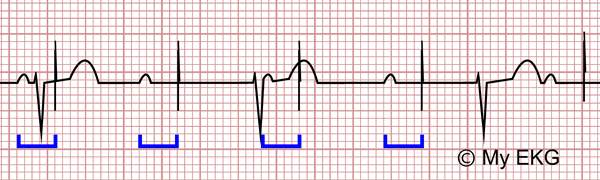 Electrocardiogram of pacemaker malfunction, Capture failure