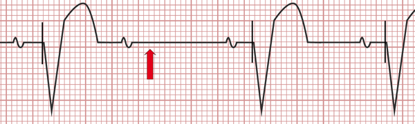 Electrocardiogram of pacemaker malfunction, Pacing spikes are absent