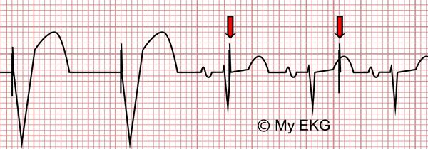 Disfunción de Marcapasos en el Electrocardiograma, Infrasensado